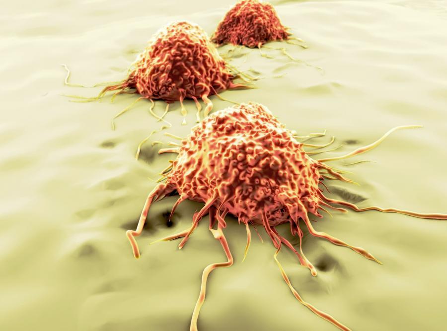 Co powoduje raka?