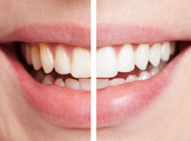 Ультразвуковая чистка зубов + AIR FLOW + покрытие зубов фторлаком + обследование у стоматолога-ортопеда- Купончо.ру