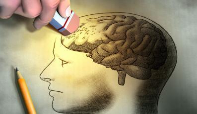 Mózg: problemy z pamięcią