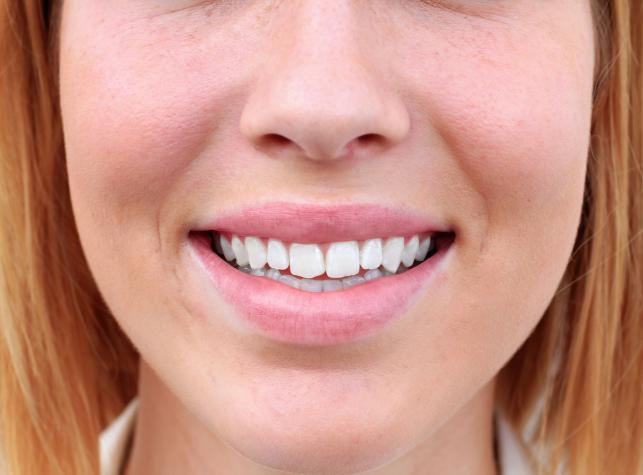 Co niszczy zęby?