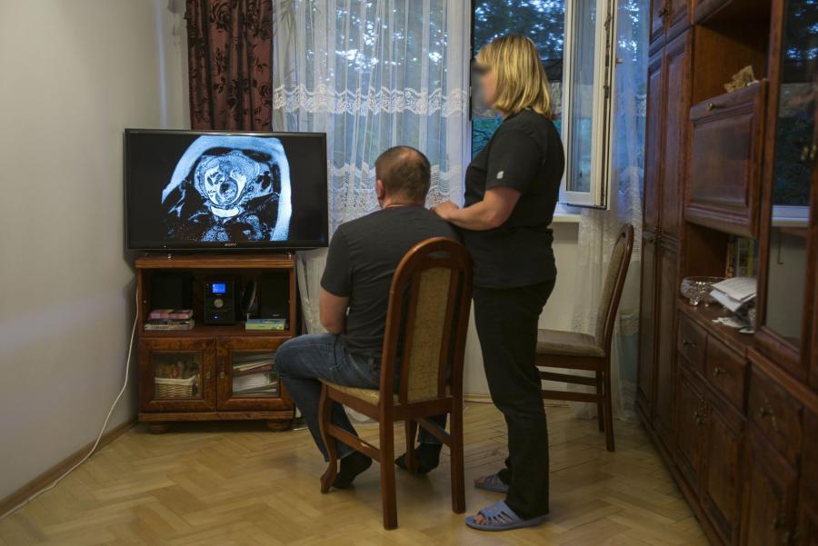Agnieszka i Jacek, rodzice dziecka, którym prof. Chazan odmówił aborcji