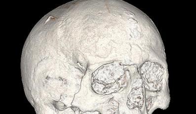 Naukowcy znaleźli najstarszy ludzki mózg